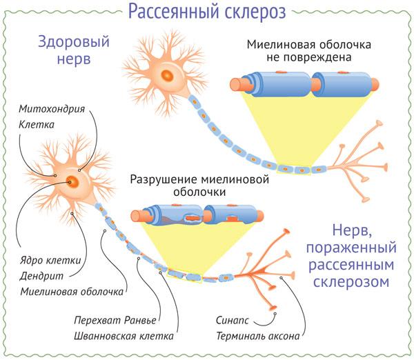 Рассеянный склероз (схема)