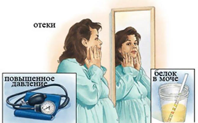 Женщина с отёчным лицом перед зеркалом, тонометр, тест на белок в моче