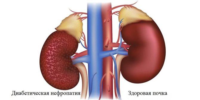 Состояние почек при диабетической нефропатии и в норме