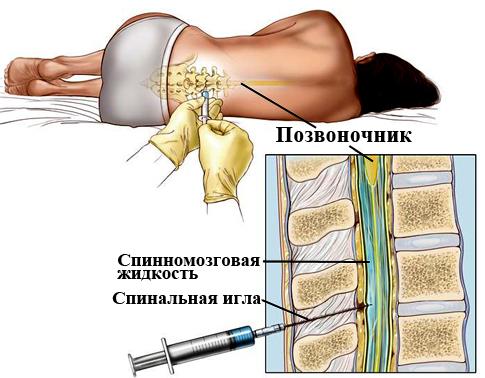 Спинномозговая пункция (схема)