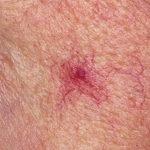 Телеангиэктазия на коже