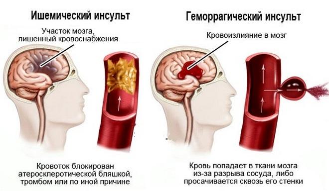 Виды нарушения мозгового кровообращения
