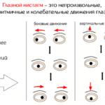 Виды нистагма (схема)
