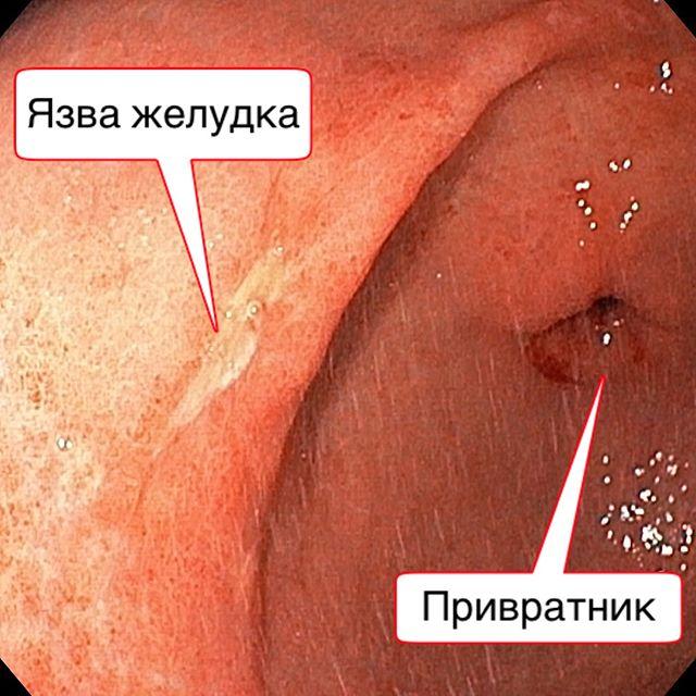 Язва желудка (вид при проведении ФГДС)