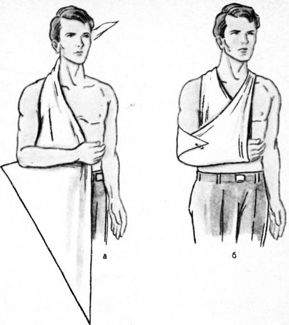 Косыночная повязка: схема