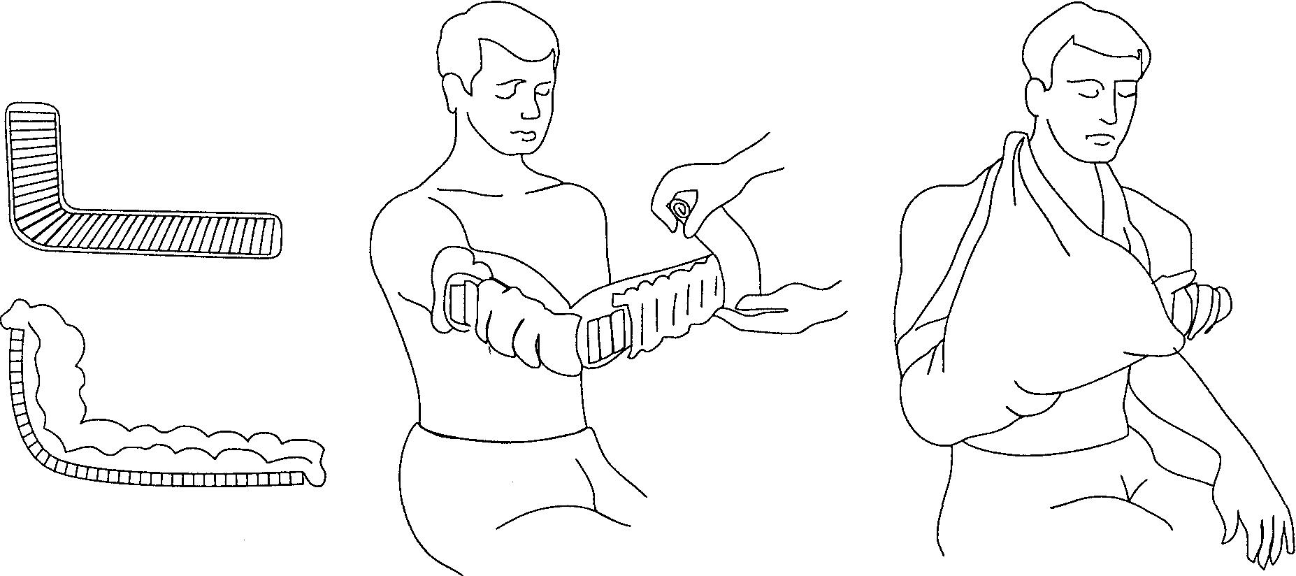Перелом предплечья со смещением первая помощь при открытых переломах