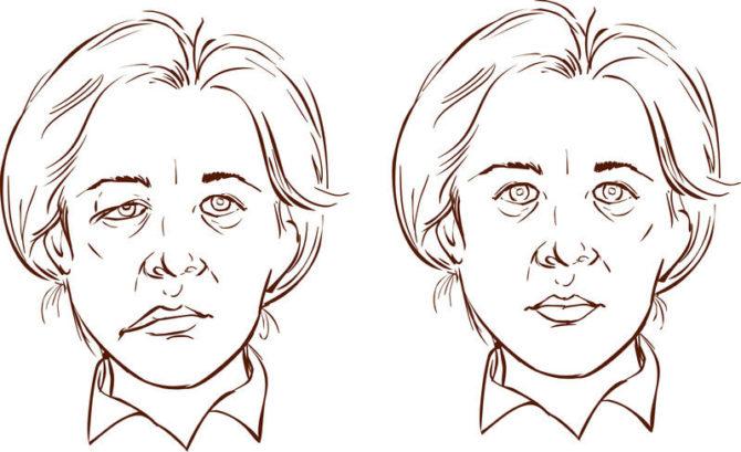 Лицо женщины: здоровое (справа) и поражённое гемифациальным спазмом (слева)