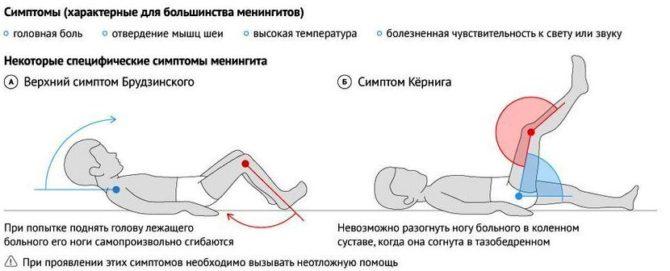 Менингеальные знаки (схема)
