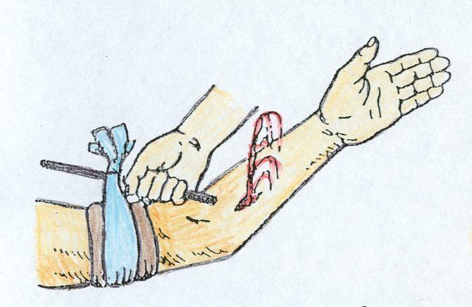 Остановка кровотечения: схема