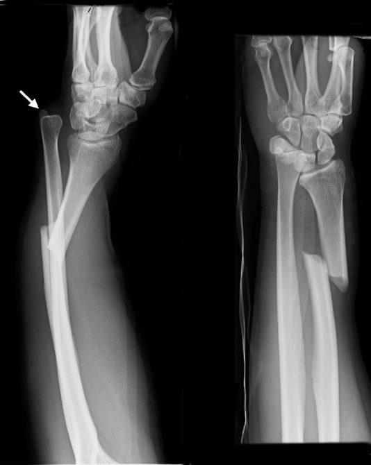 Сломанные кости предплечья на снимке