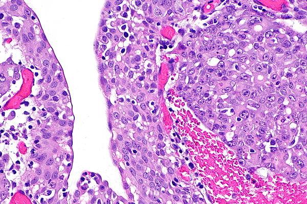 Фиброма почки (вид под микроскопом)