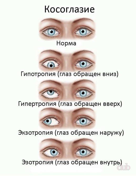 Разновидности косоглазия (схема)