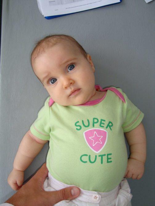 Ребёнок с признаками кривошеи