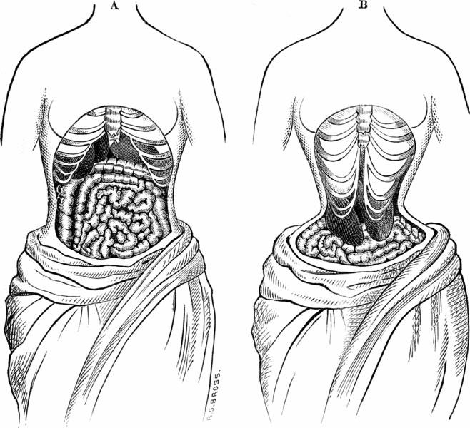 Тело женщины при ношении корсета