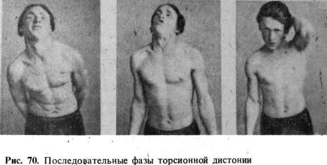 Фазы торсионной дистонии