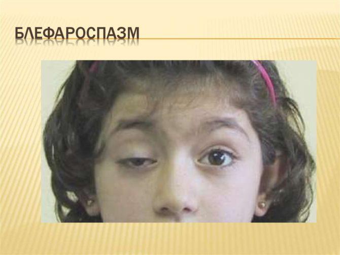 Блефароспазм у девочки