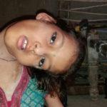 Девушка с тяжёлой формой кривошее