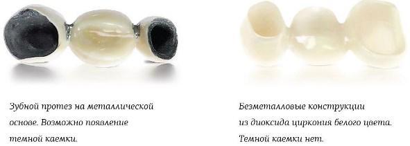 Отличие зубных протезов из металла и циркония