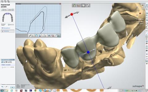 3D слепок для создания циркониевых коронок