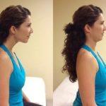 Кривошея у девушки до и после операции