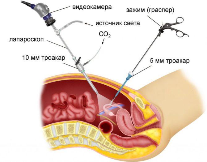 Лапароскопия (схема)