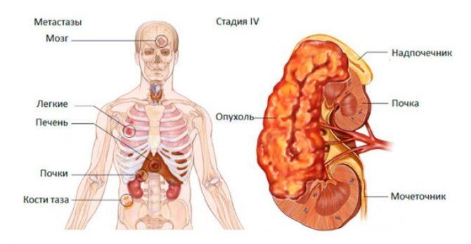 Локализация метастазов рака почки (схема)