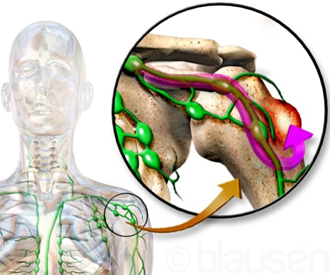 Метастаз рака в кость