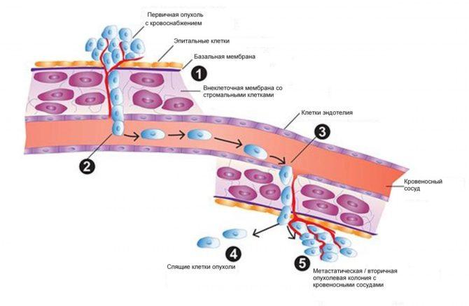 Метастазирование опухоли (схема)