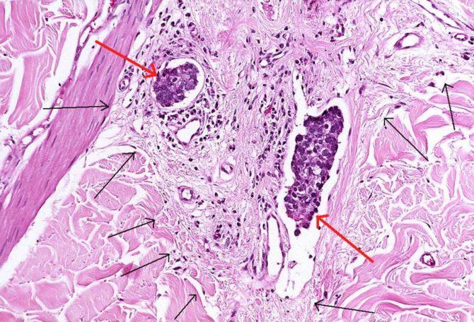 Метастазы опухоли в лимфатических сосудах (картина под микроскопом)