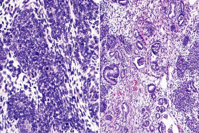 Опухоль Вильмса (картина под микроскопом)