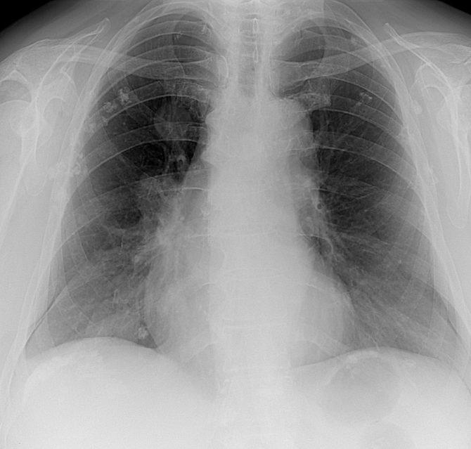 Рентгеновская картина метастазов рака почки