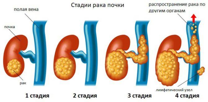 Стадии рака почки (схема)