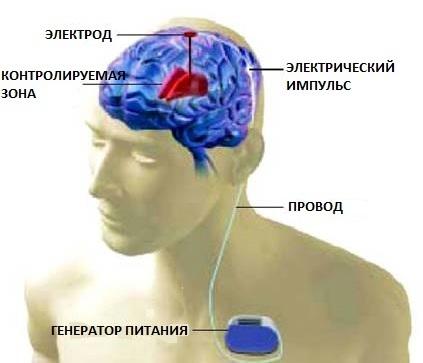 Суть метода «глубокой стимуляции мозга»