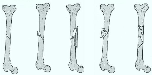 Виды различных переломов