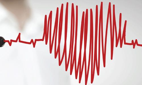 Симптомы и диагностика аритмии