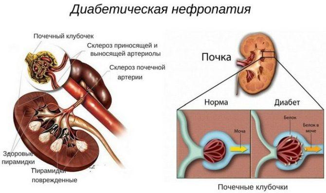 Диабетическая нефропатия (схема)