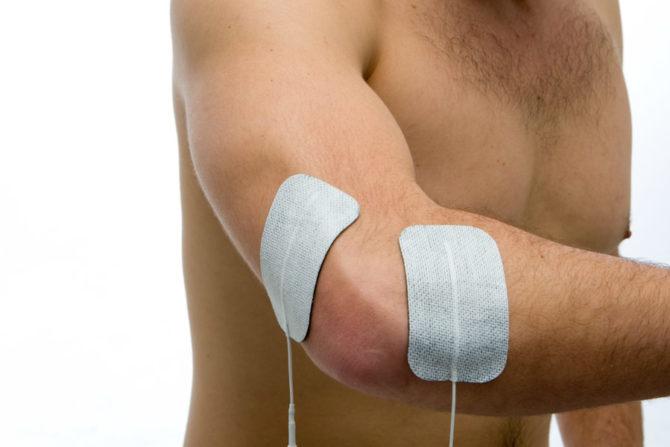Электростимуляция локтевого сустава