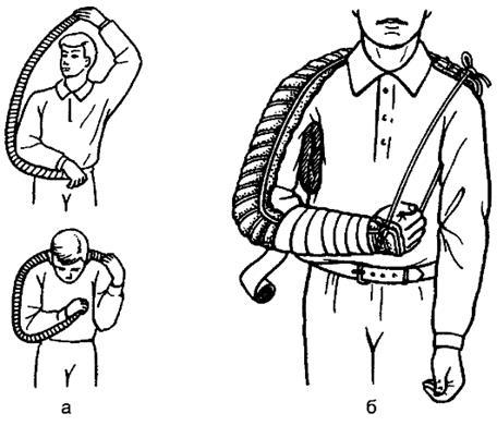 Иммобилизация верхней конечности шиной Крамера