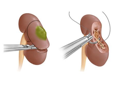Операция по удалению опухоли почки