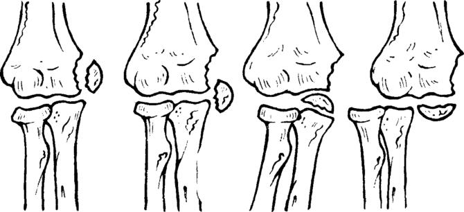 Схематическое изображение различных типов смещения осколков при переломе медиального надмыщелка плечевой кости