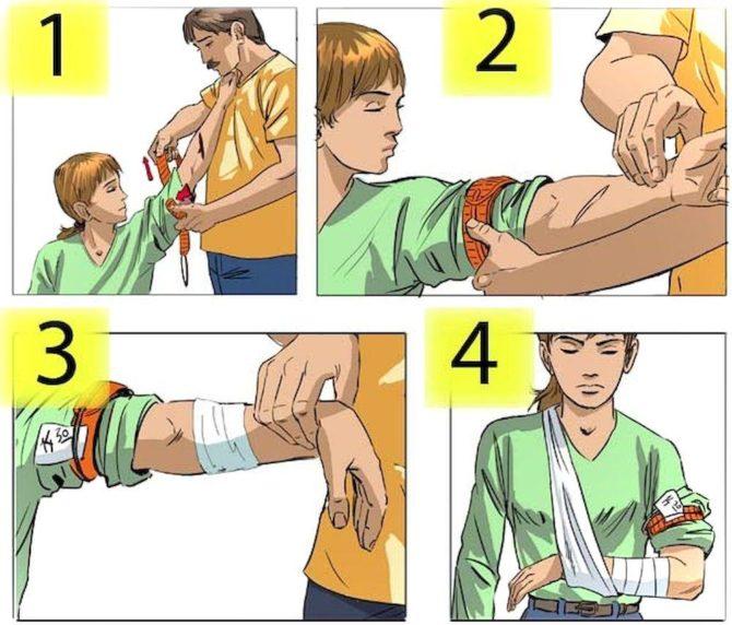 Первая помощь при переломе конечности