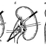 Пиелолитотомия