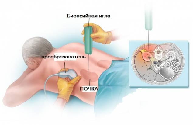 Проведение биопсии почки