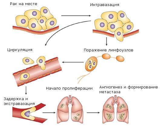 Схема распространения раковой опухоли