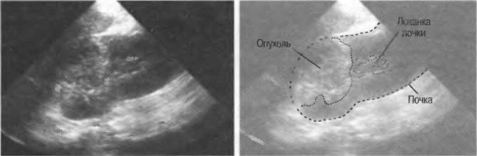 УЗИ-картина нефробластомы