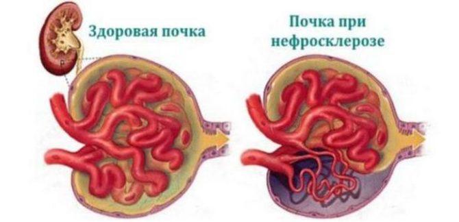 Здоровая почка и поражённая нефросклерозом