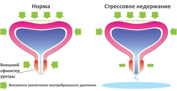 Схематическое изображение стрессового недержания мочи