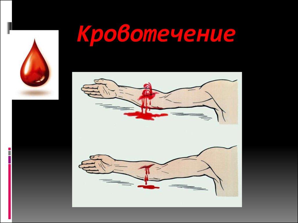 Артериальные кровотечения и первая помощь при них