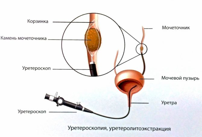 Эндоскопическая литотрипсия
