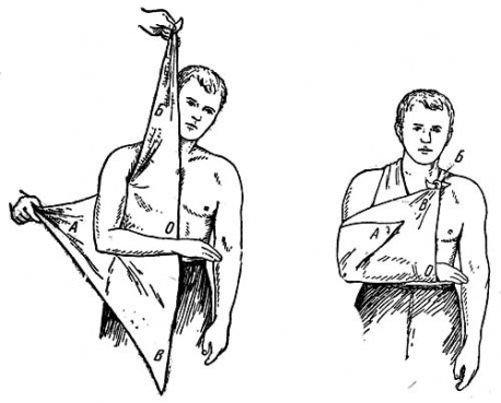 Фиксация локтя косыночной повязкой
